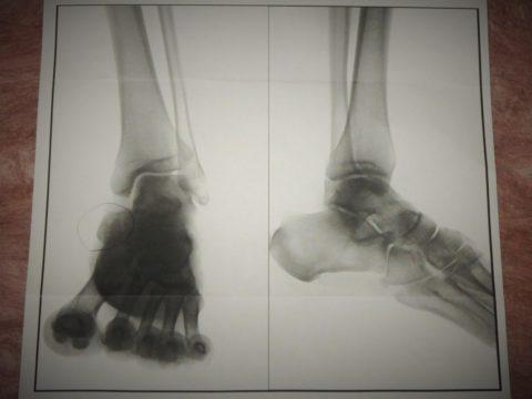 左足のレントゲンX線写真